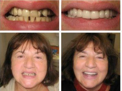 Implante-antes-e-depois-3