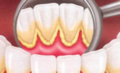 periodontia-200